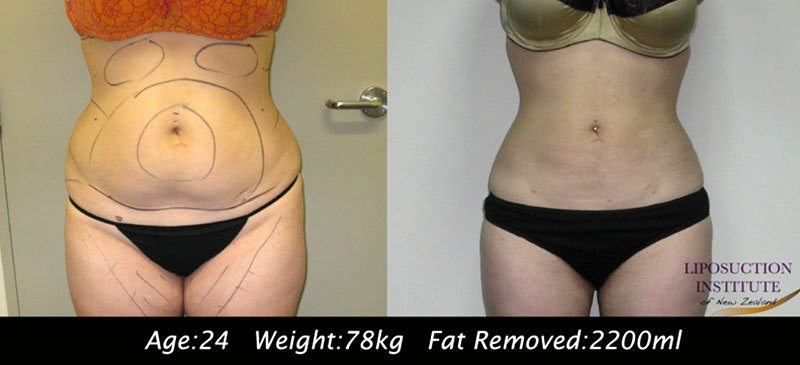 3D abdomen before and after