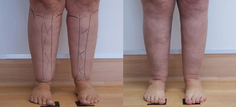 Calves Before and After