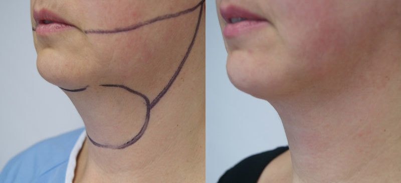 Chin Before and After