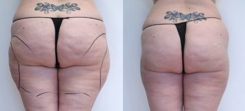 Thighs Before and After