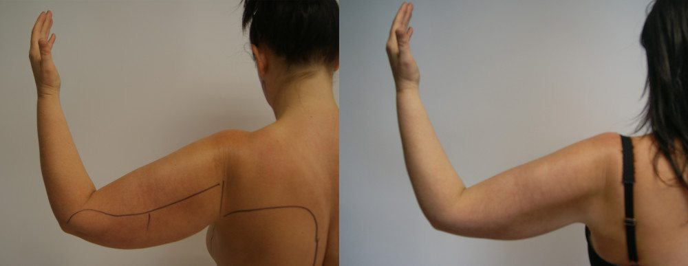 Arm before and after