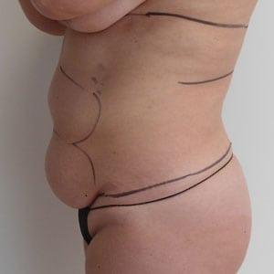abdomen2