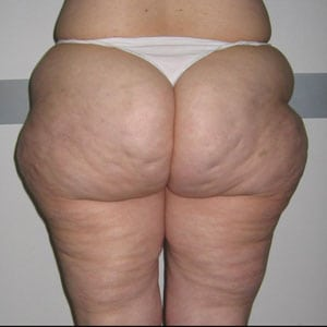 buttocks2