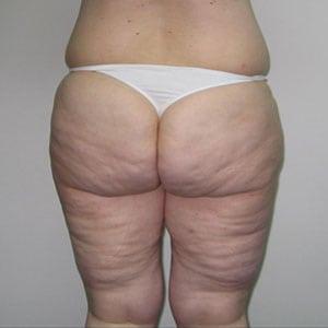 buttocks1