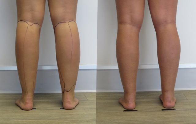 legs liposuction