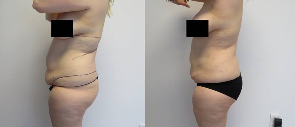 3D abdomen